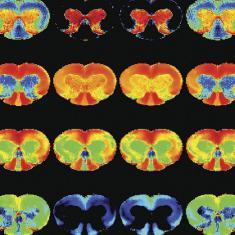 Preclinical MRI